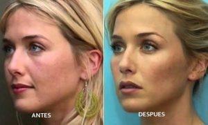 antes y despues pomulos Medicina Estética Facial Bilbao Precio