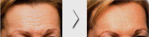 Botox Arrugas frente Medicina Estética Facial Bilbao Precio