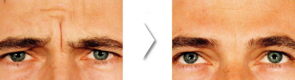 <span title=Botox>Eliminar arrugas en tercio superior</span> Medicina Estética Facial Bilbao Precio