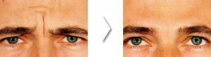 Botox arrugas Entrecejo Medicina Estética Facial Bilbao Precio
